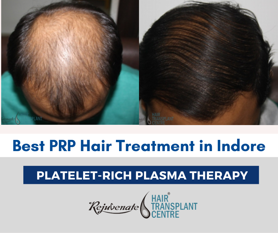 Best PRP Hair TreaBest PRP Hair Treatment in Indoretment in Indore